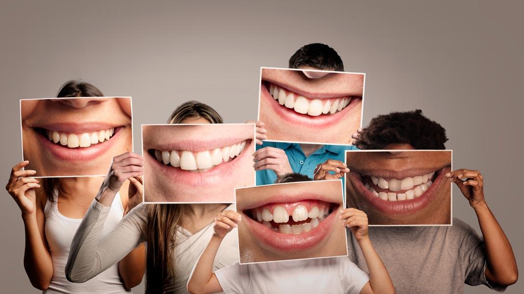 Teeth close up