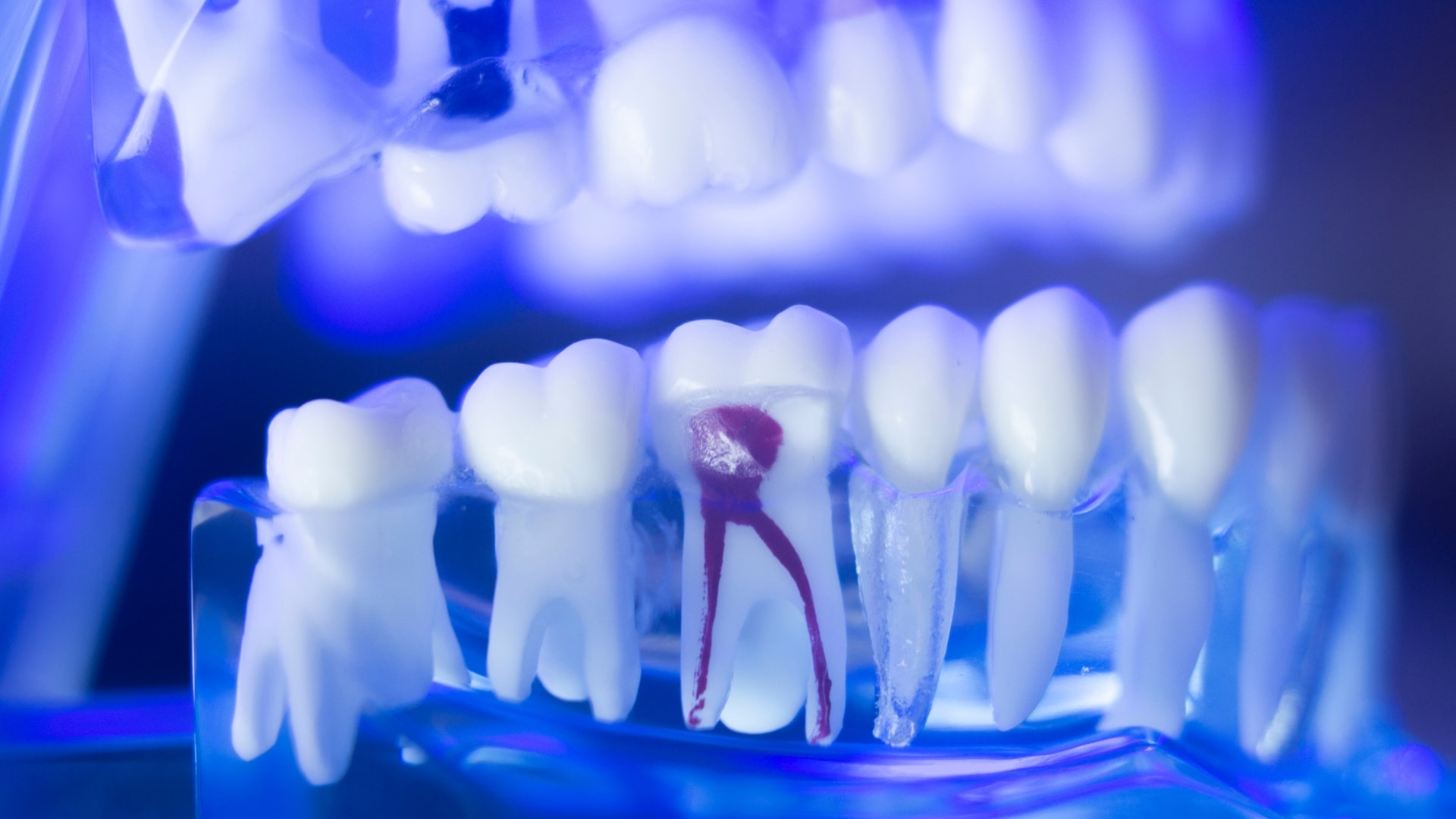 The Benefits of Getting a Root Canal Treatment